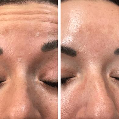 botox kezelés