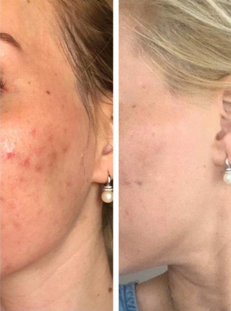 ZO Skin Health bőrterápia hölgyeknek